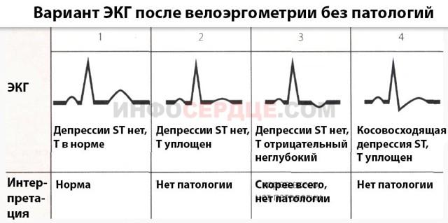 Велоэргометрия: методика подготовки и проведения теста под нагрузкой, показания и противопоказания
