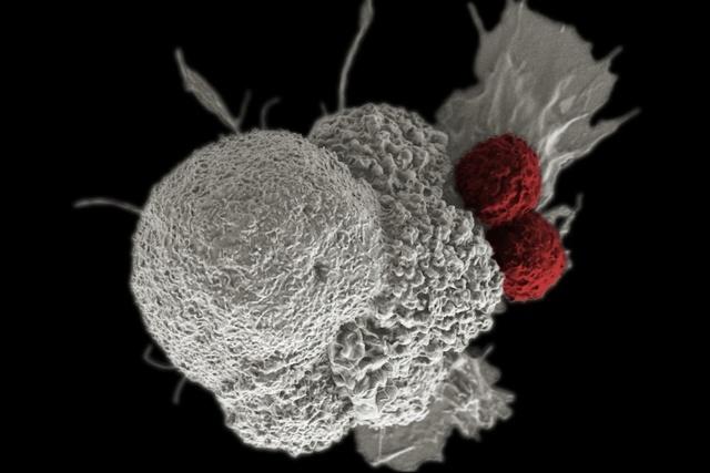 Какой должен быть уровень гемоглобина при ВИЧ-инфекции: норма