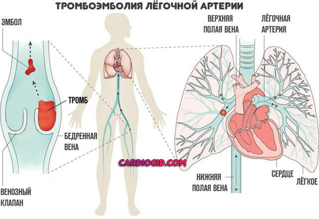 Тромбоэмболия легочной артерии: причины возникновения, симптомы, лечение, прогноз для жизни