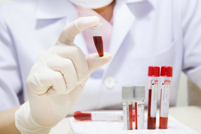 Антистрептолизин: значение биохимического исследования на АСЛО для выбора лечения ребенка и взрослого