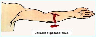 Первая помощь при артериальном кровотечении: правила оказания помощи