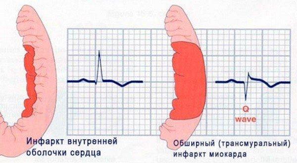 Какое количество инфарктов может пережить человек