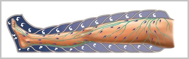 Прессотерапия при варикозе на ногах: отзывы, показания, противопоказания