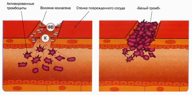 Норма тромбоцитов у детей: таблица по возрасту, причины отклонений, лечение