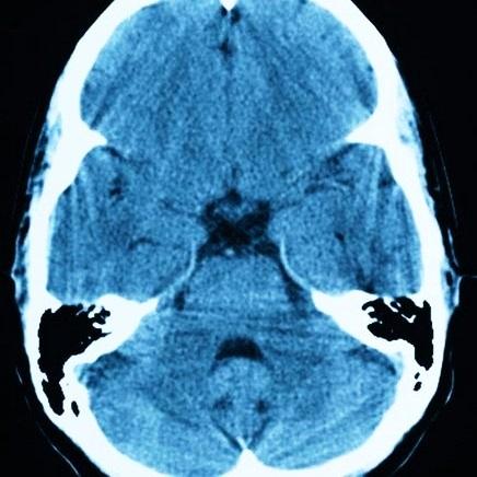 Киста головного мозга: причины возникновения, симптомы и методы лечения
