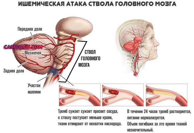 Атеросклероз сосудов головного мозга: симптомы и лечение, профилактика и прогноз на жизнь
