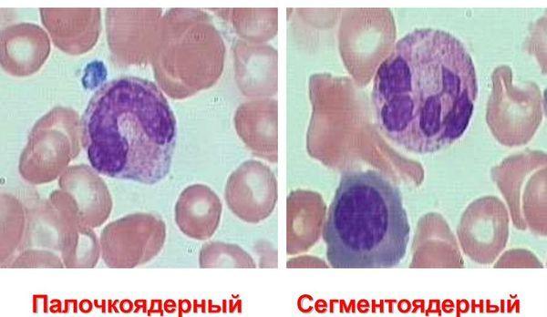 Сегментоядерные нейтрофилы понижены или повышены у взрослого или у ребенка: о чем это говорит