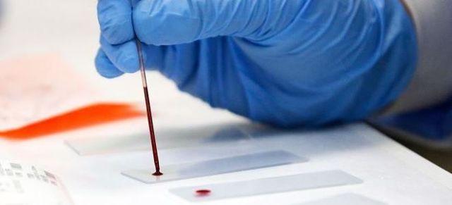 Катионный эозинофильный белок (ecp): что показывает, норма, анализ, причины отклонения