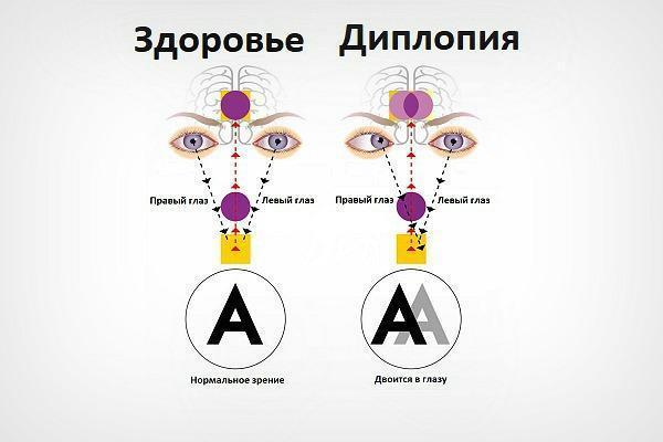Двоится в глазах: опасно ли состояние и что делать