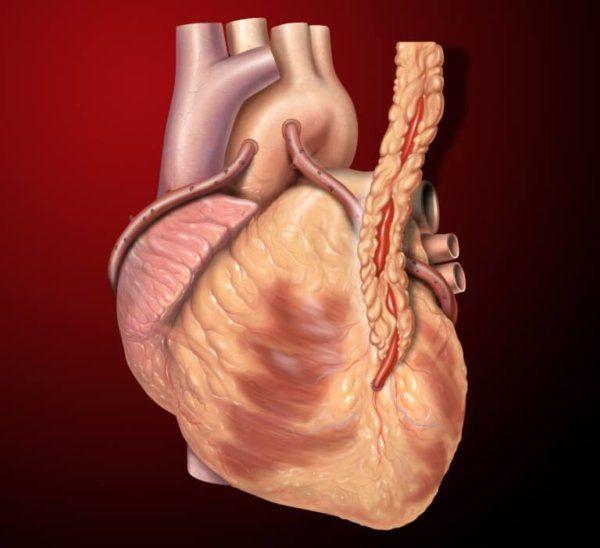Все риски атеросклероза аорты сердца