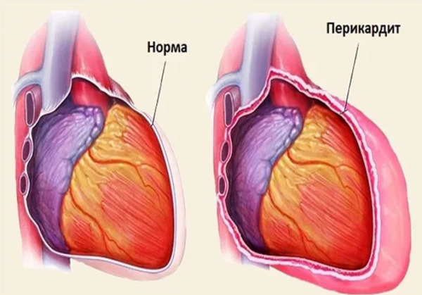 Давящая и сжимающая боль в области сердца: причины, признаки, диагностика и лечение