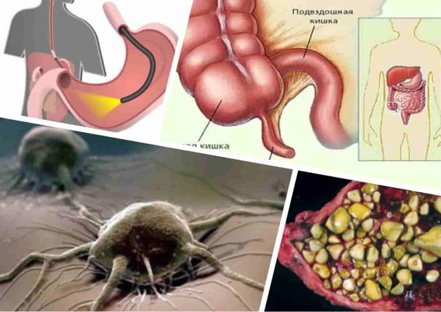 Амилаза мочи и крови: функции фермента и общий показатель нормы, причины отклонения, лечение
