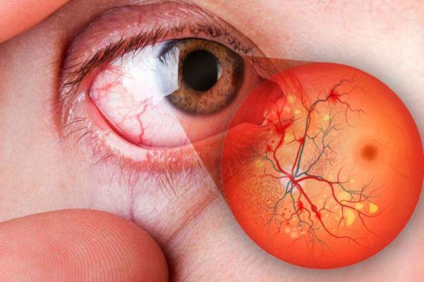 Понятие об ангиопатии сосудов сетчатки глаза