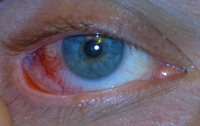 Глазное давление: причины повышения и понижения ВГД у мужчин и женщин, симптомы и лечение, профилактика