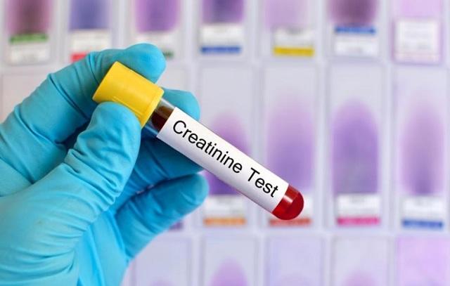 Как понизить креатинин в крови в домашних условиях быстро и эффективно народными средствами и медикаментами