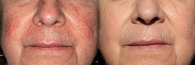 Сосудистые звездочки на лице: причины появления, как и чем убрать, лечение