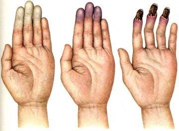 Синдром Рейно: причины и симптомы заболевания, методы диагностики и лечения