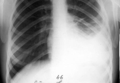 Кардиалгия: что это такое, симптомы, диагностика и лечение