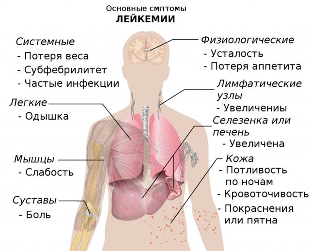 Лейкоз у детей: причины возникновения и симптомы, классификация заболевания, диагностика и лечение лейкемии