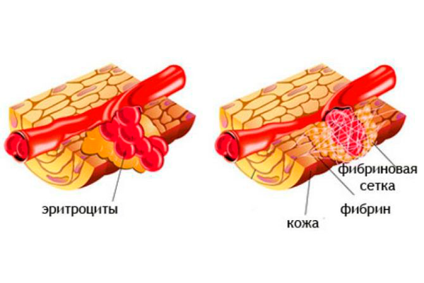 Фибриноген при беременности: норма и патологические показатели, таблица норм и причины отклонений