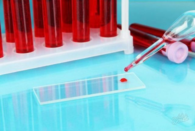 Мочевина в крови: норма уровня у женщин и мужчин, таблица, что показывает анализ