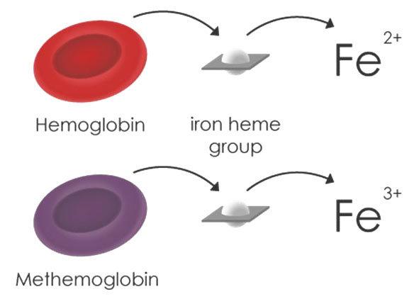 Метгемоглобинемия: что это такое, анализы, причины, симптомы, лечение