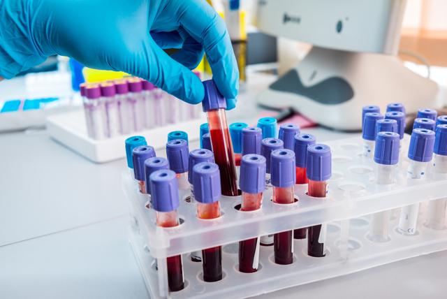 Анализ крови ПСА у мужчин: сущность, порядок сдачи, норма по возрасту и корректировка результата