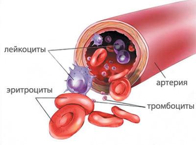 Повышен гемоглобин и уровень тромбоцитов у взрослых и детей в крови: что это значит, причины