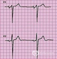 Увеличение правого желудочка сердца причины