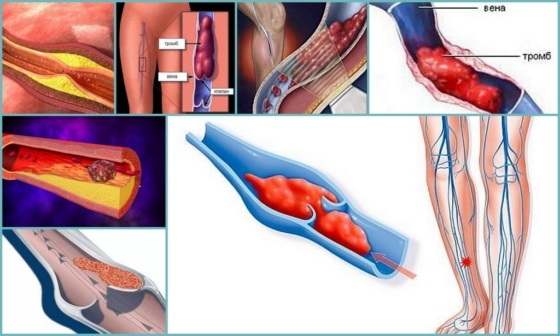 Причина отрыва тромба и последствия