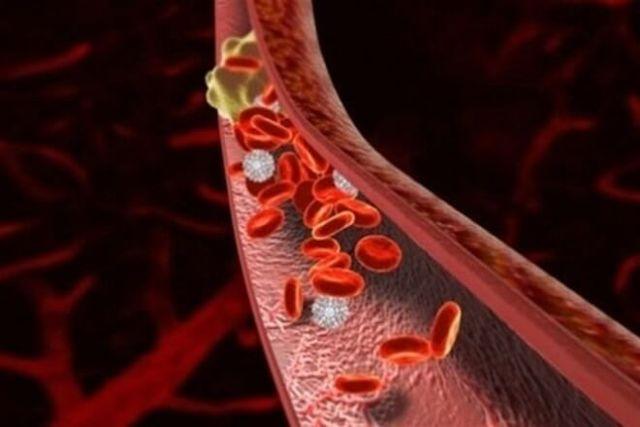 Тромб: причины образования в сосудах человека и симптомы патологии, отрывание сгустка и способы избежать