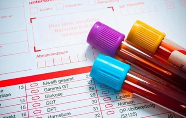Мочевая кислота в крови повышена: причины, симптомы и лечение