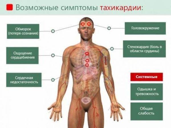 Тахикардия: симптомы, что надо делать, что нельзя делать