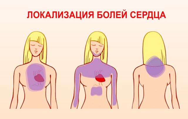 Боли в сердце или невралгия: как отличить и как правильно оказать первую помощь, советы специалистов