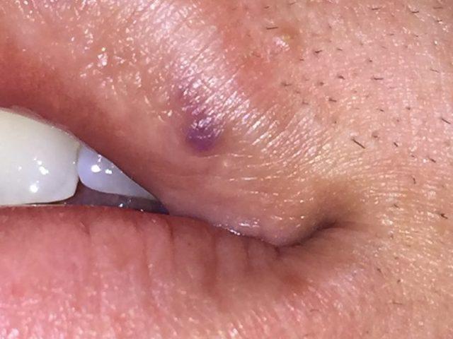 Гемангиома на губе у взрослых и детей: лечение