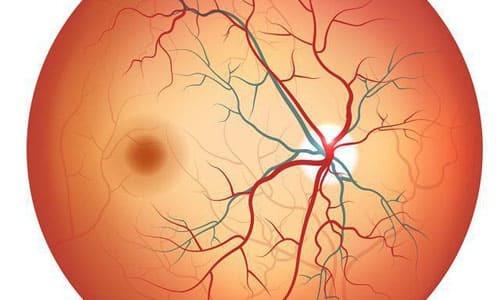 Ангиопатия сетчатки: причины поражения сосудов глаз и симптомы болезни, способы лечения