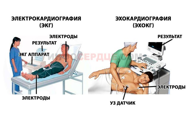 Предынфарктное состояние: причины развития и первые признаки, симптомы патологии и способы лечения