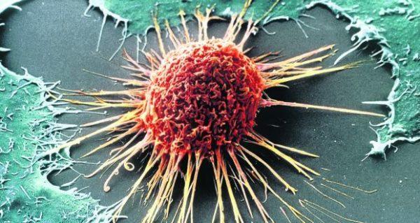 Тромбоцитоз: что это такое, причины, признаки, симптомы, диагностика и лечение