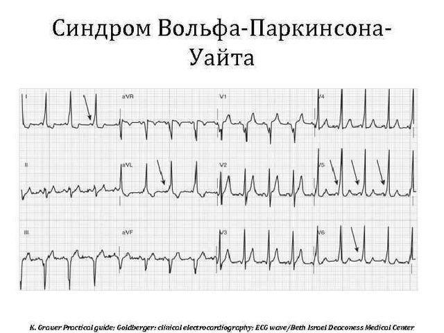 Синдром Вольфа-Паркинсона-Уайта (wpw): что это такое, причины, симптомы, диагностика и лечение