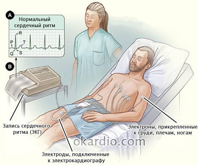 Кардиоверсия: что это такое, как проходить, виды, показания и противопоказания, отзывы