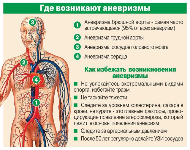 Разрыв аневризмы сосудов головного мозга: причины, симптомы и последствия
