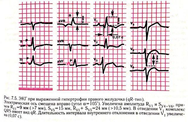 Гипертрофия правого желудочка сердца: причины увеличения,ЭКГ признаки, симптомы, как лечить