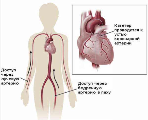 Коронарография сосудов сердца: описание методики, ход операции, показания и возможные осложнения процедуры