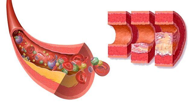 Атеросклероз аорты: причины поражения грудного и брюшного отдела, симптомы изменений в сосудах и лечение