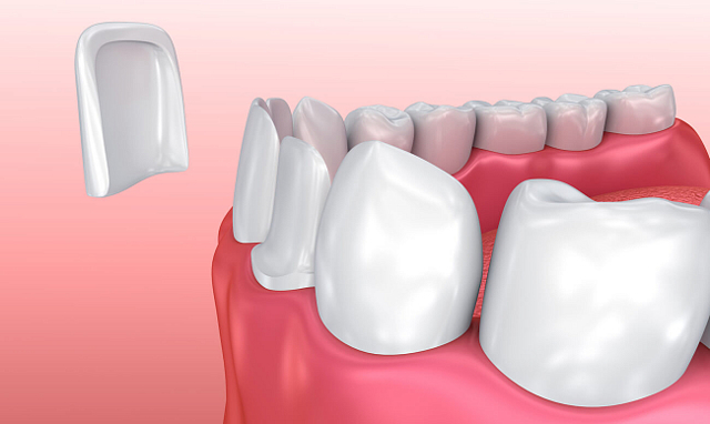 Съемные виниры на зубы: показания, фото, отзывы реальных людей, минусы и плюсы