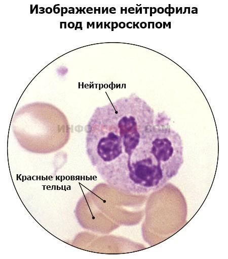 Незрелые гранулоциты в анализе крови у взрослых и детей: что это значит, норма, причины повышенных и пониженных значений, лечение