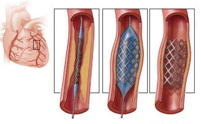 Острая коронарная недостаточность: причины появления синдрома, основные симптомы, диагностика и лечение
