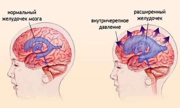 Гипертензионный синдром у детей и взрослых: симптомы, лечение, профилактика