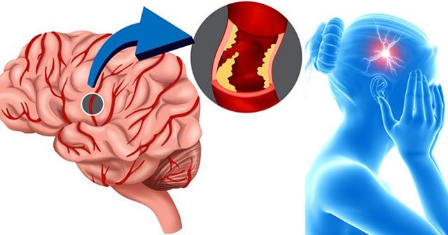 Инсульт головного мозга: симптомы, последствия, виды, лечение, прогноз и профилактика