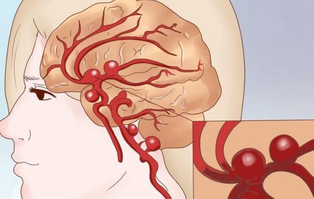 Эмболия: виды и причины острого заболевания сосудов, его симптомы и признаки, методы лечения